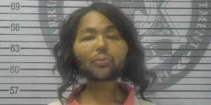 Alabama Woman Admits To Robbing Bank For Plastic Surgery Money